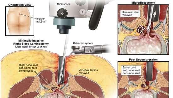 Asportazione Microchirurgica dell'ernia discale vertebrale.