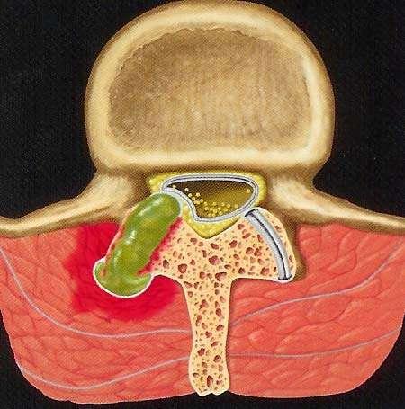 Ipertrofia articolare con conseguente stenosi foraminale ed canalare.