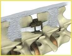 Interspinoso posizionate tra due vertebre.