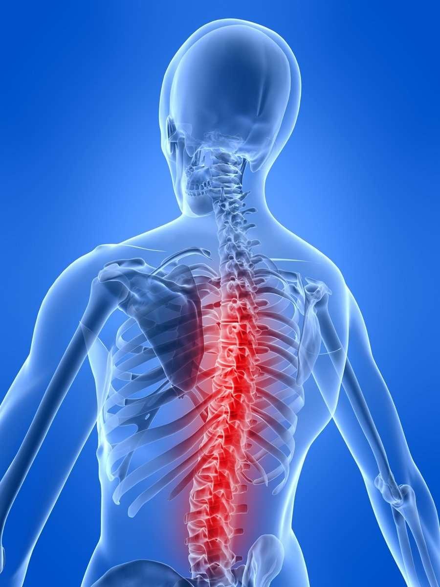La discopatia spesso causa mal di schiena diffuso.