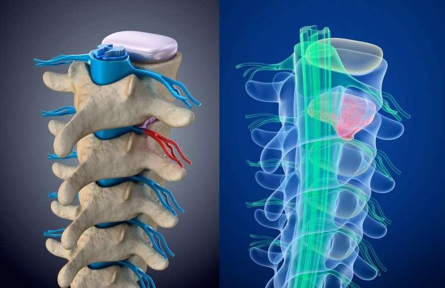 Stenosi lombare, spesso di forti dolori e limitazioni funzionali.