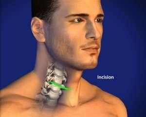 Approccio anteriore:incisione di pochi cm sul collo.