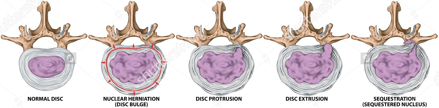 stock-photo-types-and-stages-of-lumbar-disc-herniation-herniated-disc-nuclear-herniation-disc-bulge-289987997