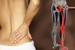 Lombosciatalgia/cruralgia è il tipico sintomo della cisti sinoviale.