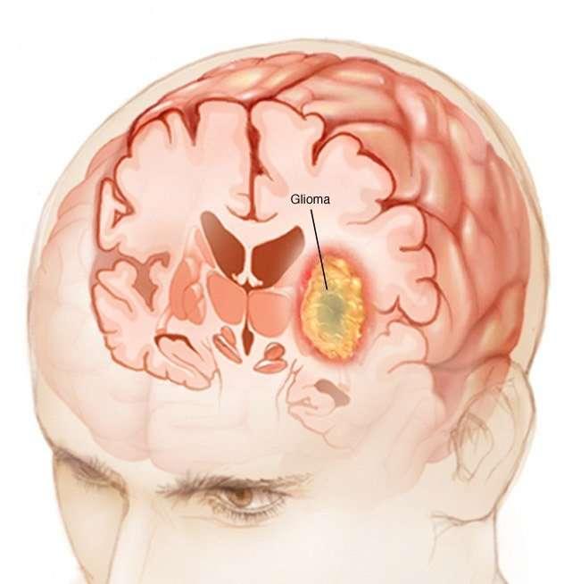Glioma cerebrale.