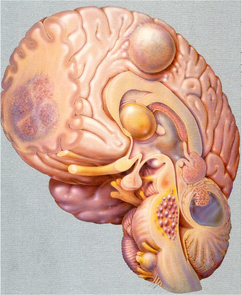 Sedi principali dei tumori cerebrali.